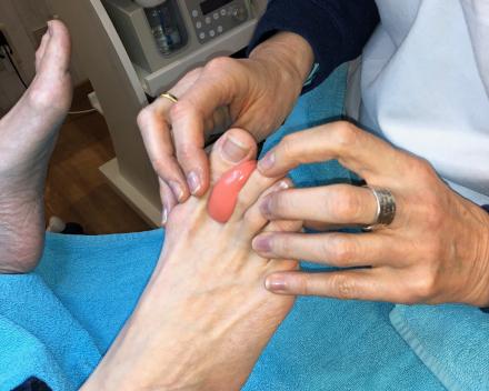 Orthoplastie of silicone orthese Hilde De Munter Die Binneste Oostende
