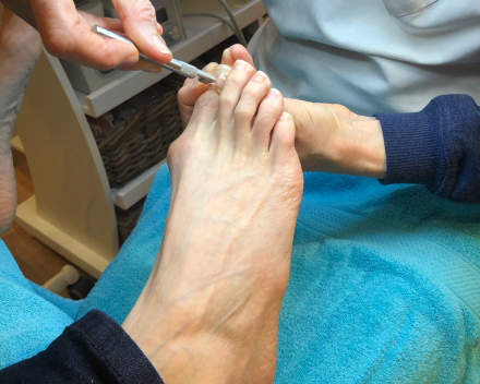 Orthonyxie of nagelbeugel Die Binneste Hilde De Munter Oostende